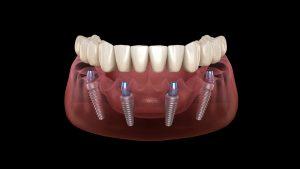 Implanturi dentare All-on-4
