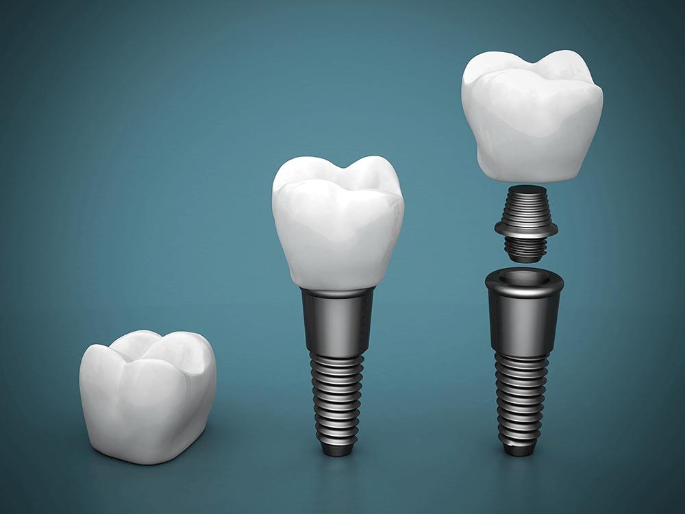 Implanturi dentare - componență