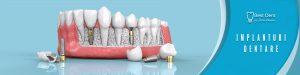 Implanturi dentare Severin