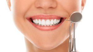 Servicii - estetică dentară