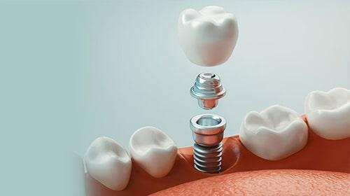Servicii - Implantologie