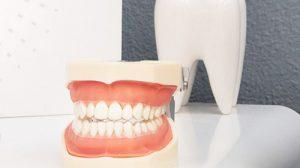 Servicii - Protetică dentară
