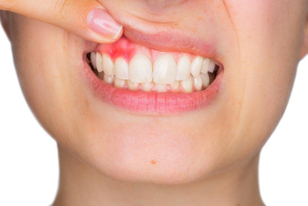 Paradontoza - boala parodontală